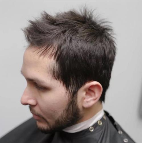 spiky balding