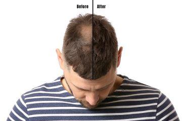 συμβουλές άντρες πυκνά μαλλιά