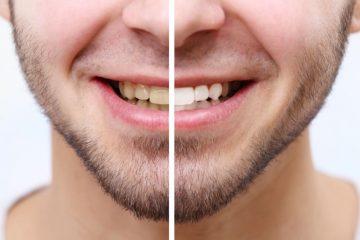 κίτρινα και λευκά δόντια